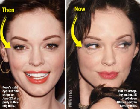 Rose Mcgowan Car Accident Scar Pictures Pictures to pin on Pinterest